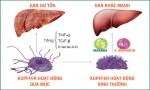 Top 5 thực phẩm có hại cho gan