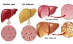Uống rượu thay cơm trong 10 năm, gan phình to toàn bong bóng mỡ