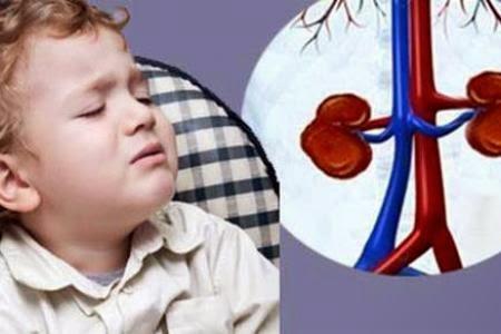 bệnh sỏi thận ở trẻ em