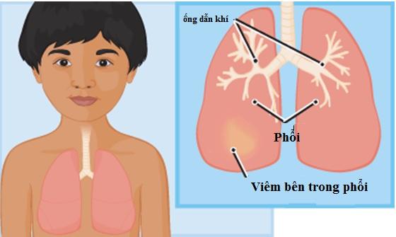 Các mẹ cứ chăm con kiểu này thì…tránh sao được bệnh viêm phổi1