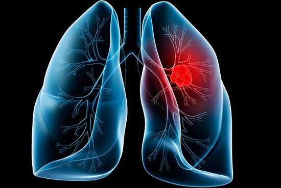 Cảnh báo: 4 nhóm nghề có nguy cơ mắc ung thư phổi cao nhất1