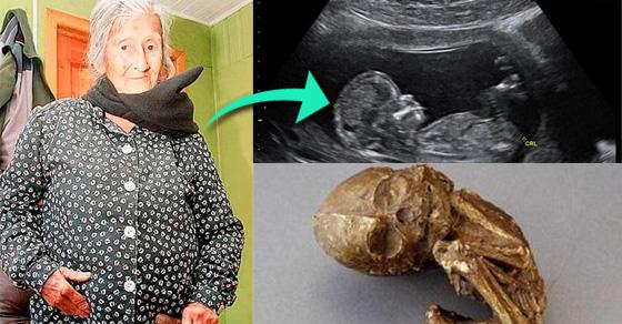 Tìm hiểu nguyên nhân, dấu hiệu của hiện tượng mang thai hóa đá1